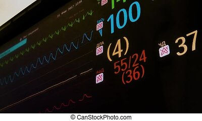 ECG monitor in operation room - The ECG monitor in the...