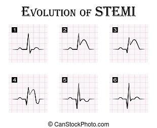 ECG of evolution ( step by step ) of STEMI ( ST elevation...