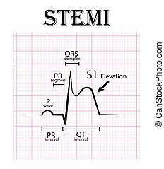 ECG of ST elevation myocardial infarction ( STEMI ) and ...