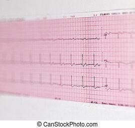 ECG printout on white back - ECG High Resolution Graph.