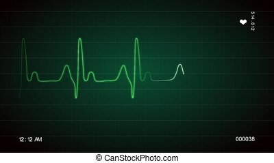 ECG Screen - An ECG screen is displaying the moving waveform...
