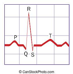 ECG trace - Heart monitor trace
