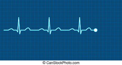 ECG Vector Illustration - Vector illustration of a heart ...