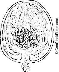 Echinococcus, vintage engraving.