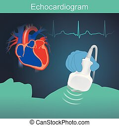Echocardiogram - Heart examination with high frequency sound...