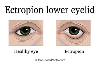 Ectropion of the lower eyelid - Illustration Ectropion of...