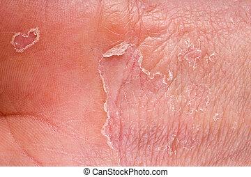 eczema on male hand with skin peeling