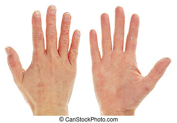 Eczema Dermatitis on Front and Back of Hand - Eczema...