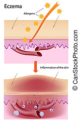 Eczema - Diagram showing skin inflammation, eps8,