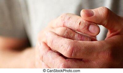 eczema., palce, łuszczenie, człowiek, szczelnie-do góry, łuszczyca, skóra