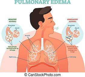 edema, ilustración, diagrama, vector, pulmón, pulmonar, ...