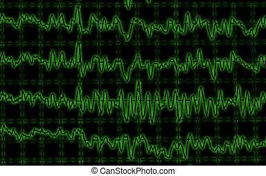 eeg, brainwave