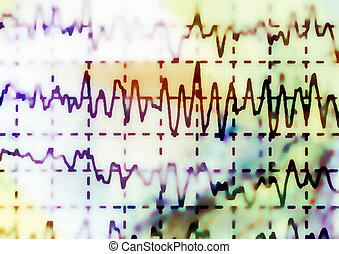 EEG for epilepsy, illustration - brain wave on...