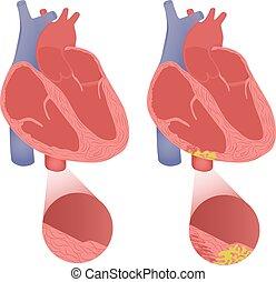 egészséges szív, noha, arrhythmogenic, cardiomyopathy.,...
