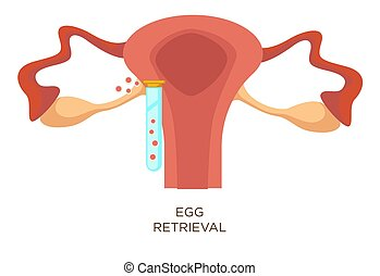 In vitro fertilization egg retrieval stage artificial insemination vector uterus and test tube with ovum female reproductive system anatomy fertility or infertility medicine reproduction clinic