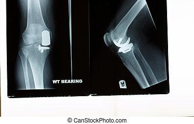 ein, röntgenaufnahme, von, a, knie, ersatz