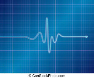 EKG - Blue - Single pulse blue EKG (ECG)