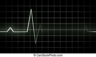 EKG display electrocardiogram - looping EKG display...