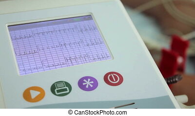 EKG ECG electrocardiography device monitor