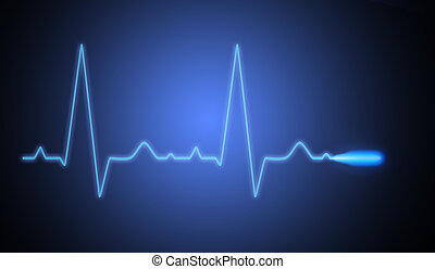 ekg - EKG