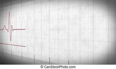 EKG electrocardiogram pulse real waveform on white paper