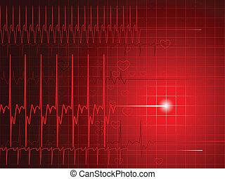 EKG flatline - An EKG monitor display shows a flatlining ...