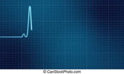 ekg, monitor cuore