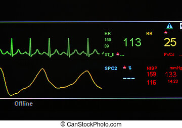 EKG monitor in ICU unit show The waves of blood pressure, blood oxygen saturation, ECG, heart rate