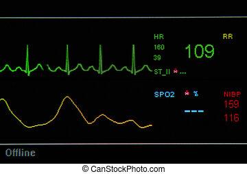 EKG monitor in ICU unit show The waves of blood pressure,...