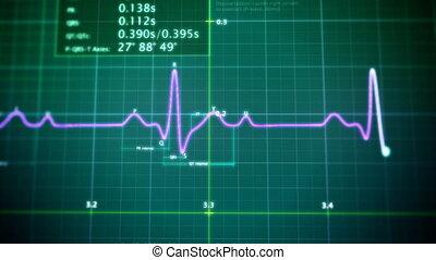 EKG monitor loop