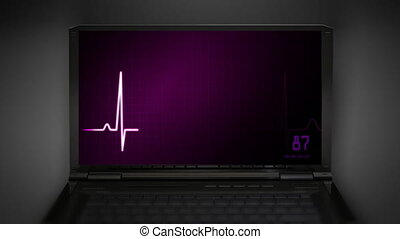 EKG monitor red love heart - EKG screen graphic at notebook...