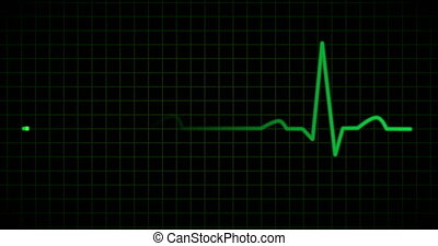 EKG or ECG line in green