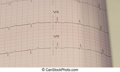 EKG paper - Shot of EKG paper
