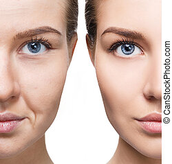 előbb, arc, után, rejuvenation., woman's