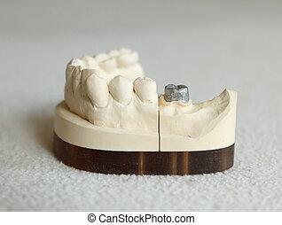 előkészítés, porcelán, fejtető, zirconium, vagy