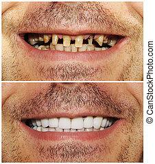 előtte és utána
