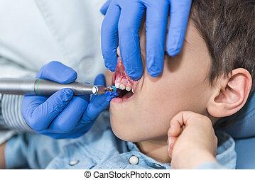 el quitar, dental, cálculo, a, niño pequeño