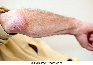 elbow infection - serious infection on senior man elbow