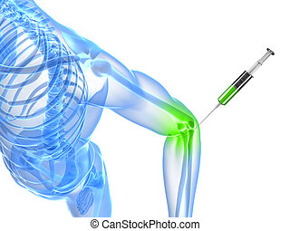 elbow joint injection - 3d rendered illustration showing an...