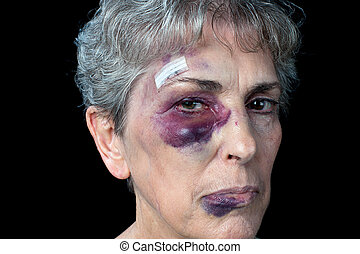 Elderly abuse - An elderly grandmother badly beaten with...