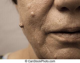 Elderly pensioner female, dermal fibroma closeup.