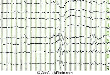 electro-encephalogramme - pulse trace of oscilloscope for a...