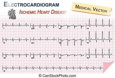 Electrocardiogram ( ECG , EKG ) of Ischemic Heart Disease ( Myocardial Infarction ) and Anatomy of heart icon