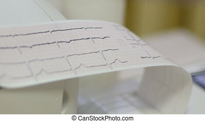 electrocardiogram from the apparatus in clinic