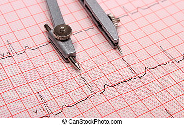 Electrocardiogram graph report and calipers - ...