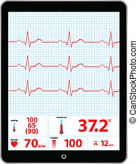 Electrocardiogram Monitor Device