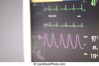 Electrocardiogram operating theater