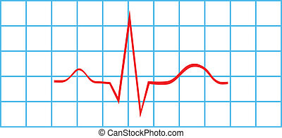 Electrocardiogram Sinus Rhythm - Normal Atrial And...