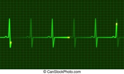 electrocardiograms - reading electrocardiograms person