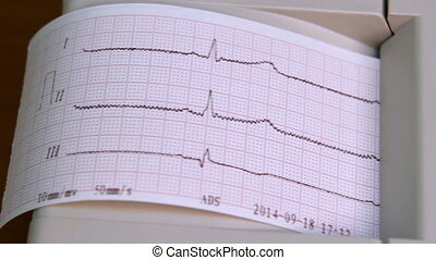 Electrocardiograph in use - ECG of human